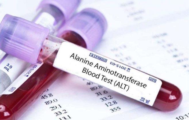 تست ALT آزمایش خون(SGPT)؛ مقدار نرمال و درمان وضعیت غیر نرمال