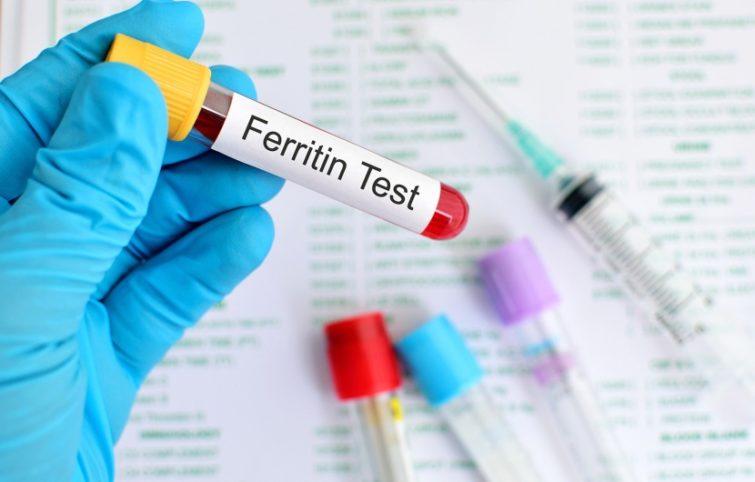 تست فریتین آزمایش خون؛ مقدار نرمال و درمان وضعیت غیر نرمال