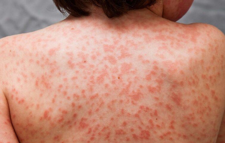 بیماری کاوازاکی ؛ علائم، علتها، تشخیص و درمان