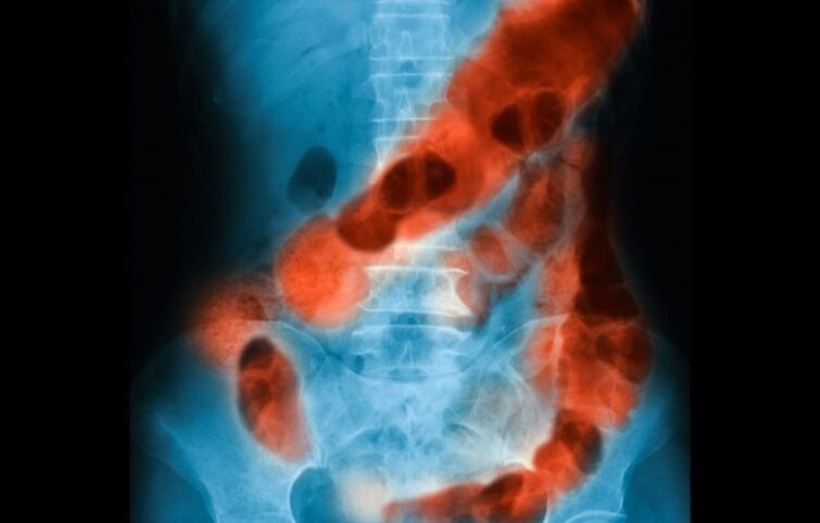 خونریزی گوارشی ؛ علائم، علتها، تشخیص و درمان