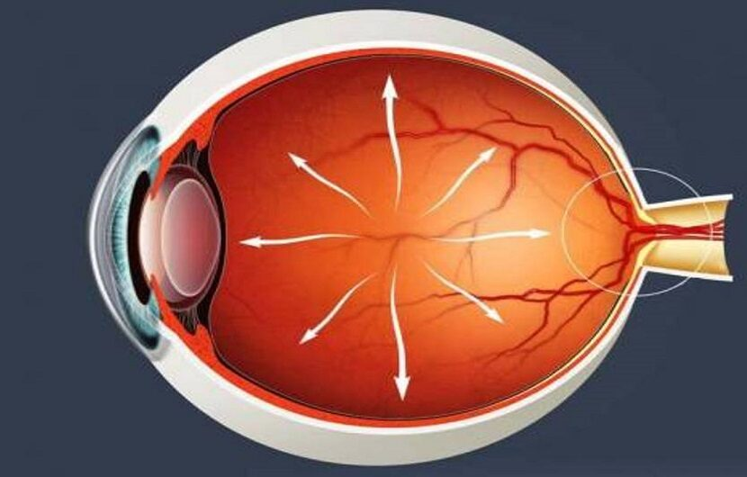 فشار چشم بالا چه عللی دارد، چگونه درمان می شود؟