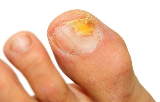 قارچ ناخن پا و بررسی علتها و درمانهای خانگی و طبی