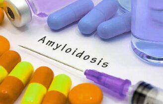 آمیلوئیدوز