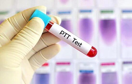 تست PTT آزمایش خون یا زمان نسبی ترومبوپلاستین؛ کاربردها و مقدار نرمال