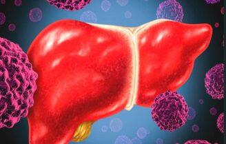 علائم سرطان کبد