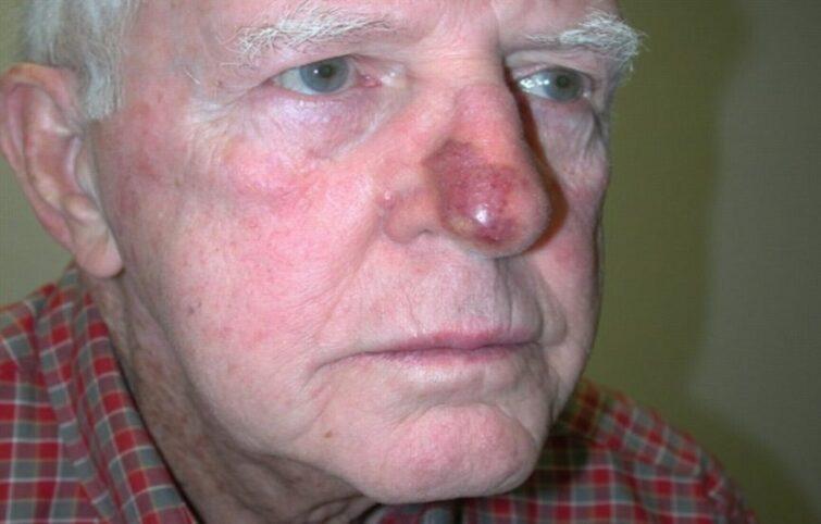 آنژیوسارکوم چیست و بهترین روشهای تشخیص و درمان آن چه هستند؟