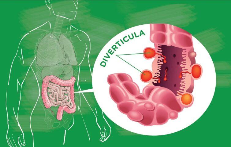 دیورتیکولیت و دیورتیکولوز؛ علل، علائم، تشخیص و درمان