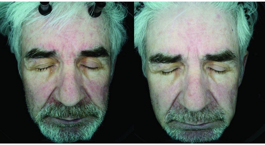 درمان درماتیت سبورئیک