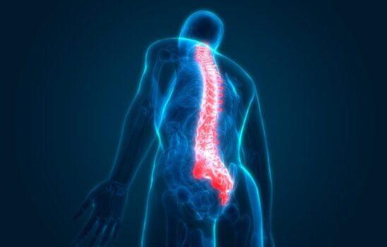گودی کمر (هایپرلوردوزیس)؛ علتها، علائم و روشهای درمان