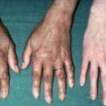 بیماری آدیسون چه عللی دارد و چگونه باید با آن مقابله کرد؟