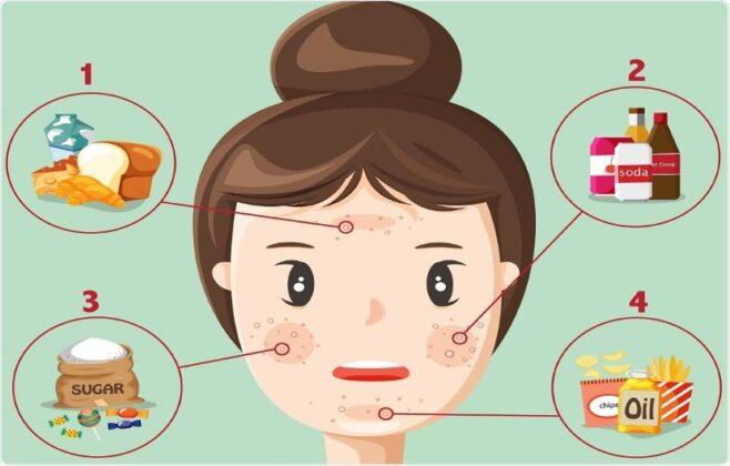 درمان جوش صورت؛ راهنمای کامل درمان جوش با اصلاح رژیم غذایی