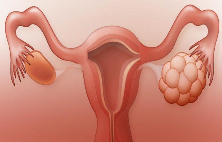 درمان تنبلی تخمدان : راهنمای کامل کنترل این سندروم با اصلاح سبک زندگی