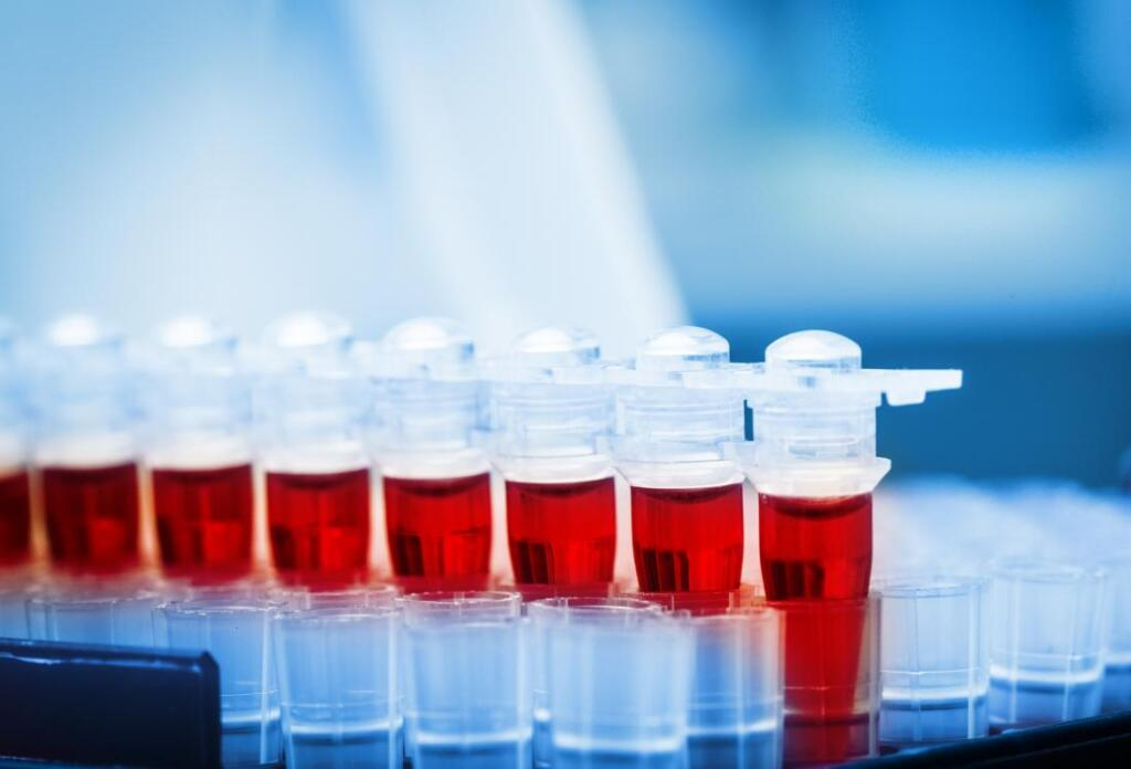 تست آلبومین آزمایش خون
