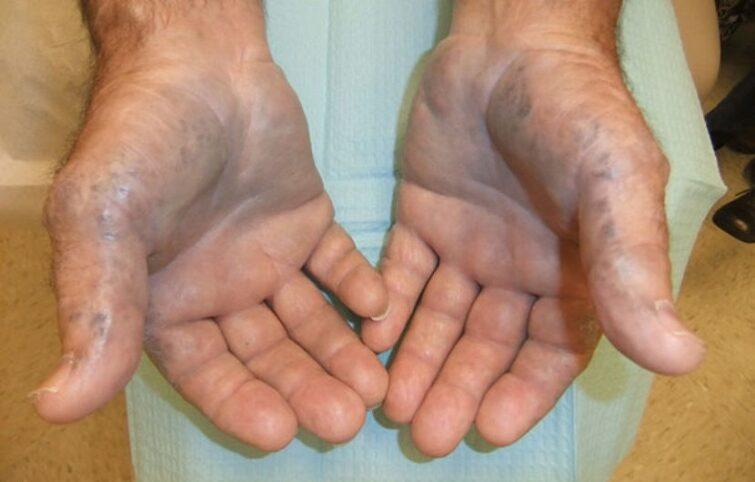 آلکاپتونوری یا ادرار سیاه (Alkaptonuria) چیست؟