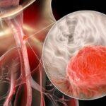سرطان مری از علائم و علتها تا درجه بندی و شیوههای درمان