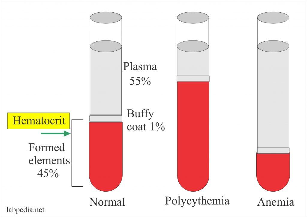 تست هماتوکریت آزمایش خون
