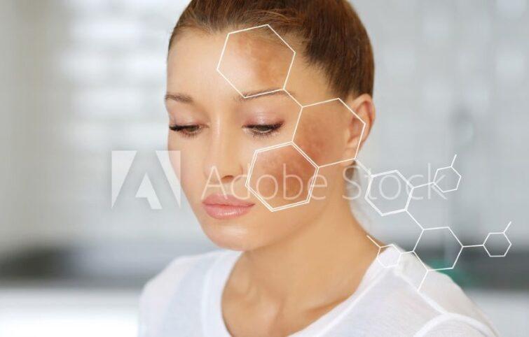 درمان لک صورت؛ راهنمای علمی درمان لک به همراه معرفی بهترین محصولات