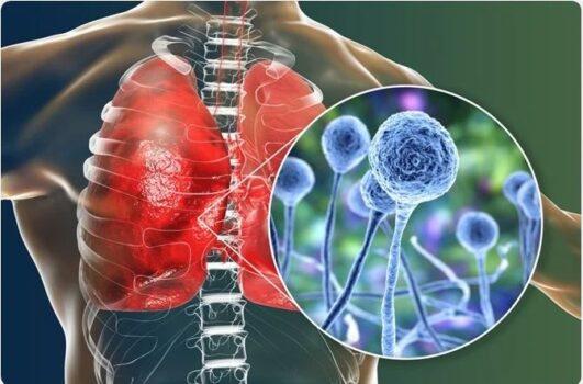 بیماری قارچ سیاه یا موکورومایکوزیس