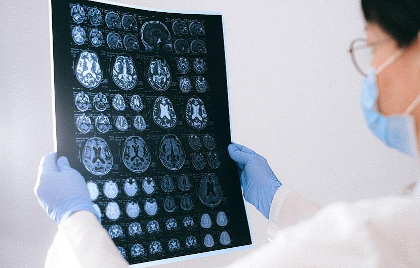 آلزایمر چیست؟ همه چیز درباره علت، علایم و درمان این بیماری