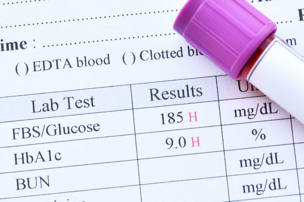 انواع آزمایش قند خون