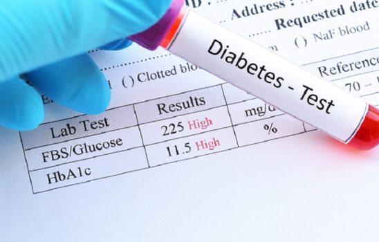 انواع آزمایش قند خون و روشهای امادگی و مقدار نرمال