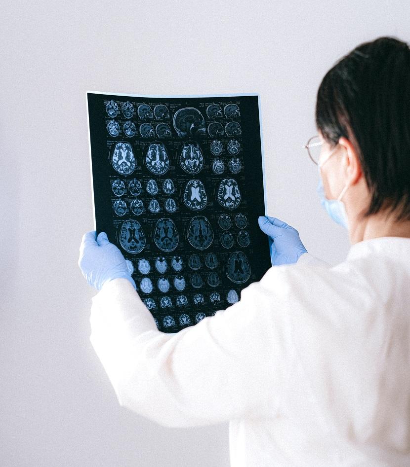 روش های تحریک مغز